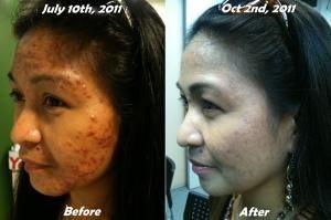 mejora facial
